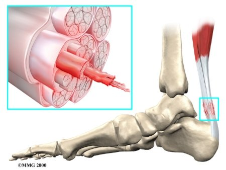 Tendonitis In The Wrist. Tendonitis+wrist+surgery